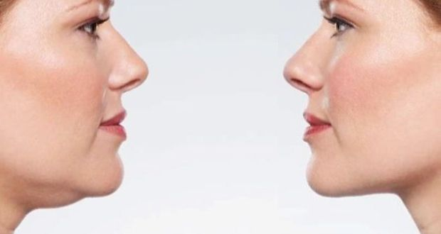 How to Lose Fat from Face and Neck