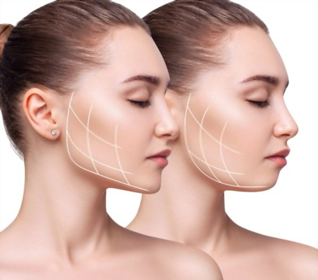 how long does it take to lose face fat depends on you
