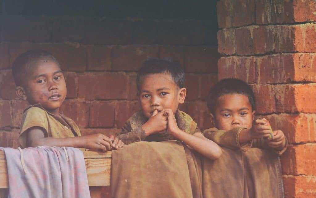 Malnutrition children due to low hemoglobin level