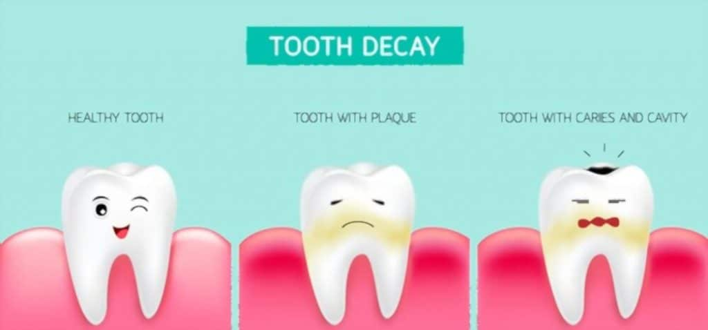 bactrim for toothache can work on tooth decay too