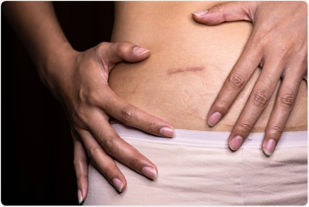 Appendix surgery — appendix inflammation causes severe pain in right side under ribs