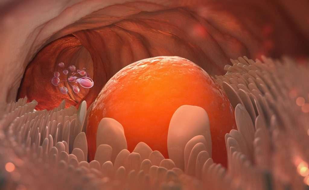 Metformin can help in ovulation