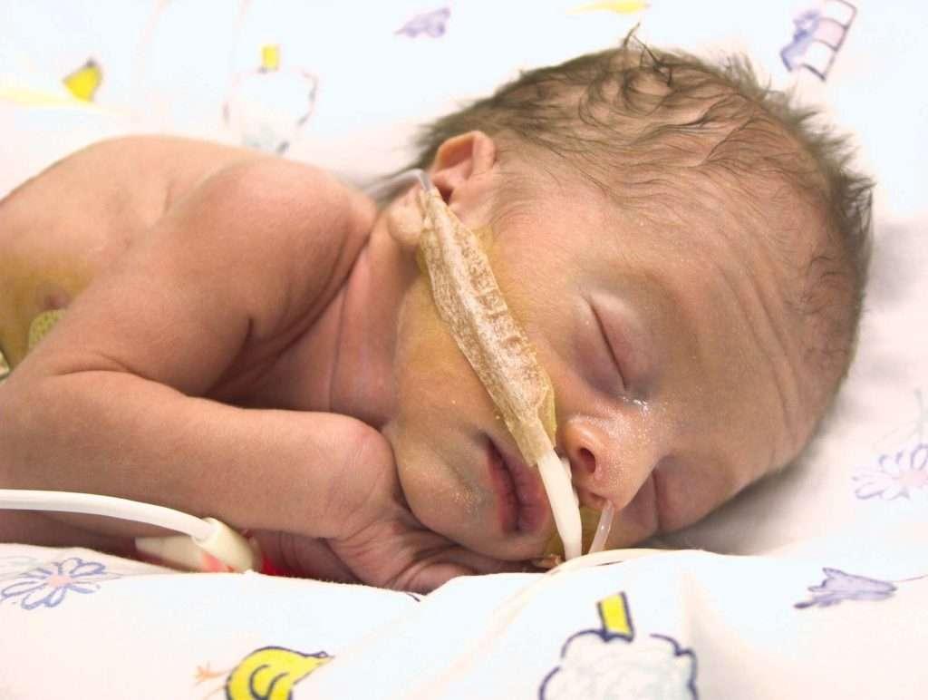 Preeclampsia woman pre-term birth, causes stunted growth of fetus.
