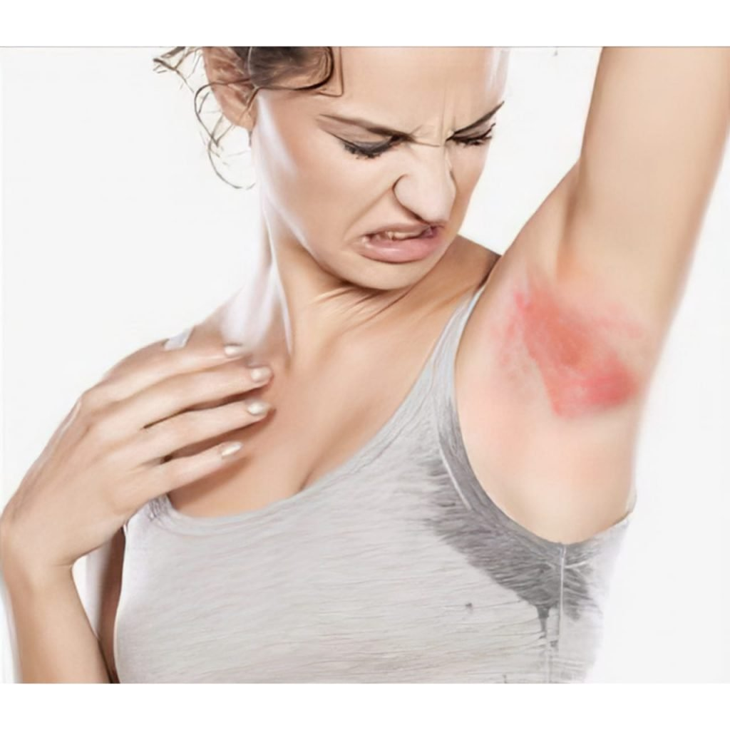 yellow armpit skin causes by fungal skin infection