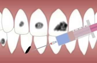 dark spots on teeth that aren't cavities