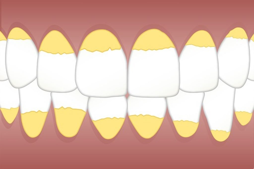 dark spots on teeth that arent cavities