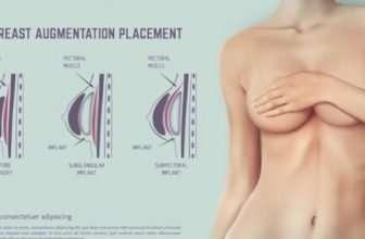fat transfer breast augmentation cost