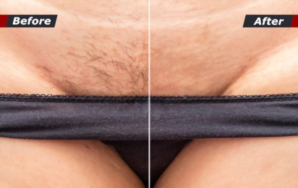 Hair Removal Cream on Private Parts