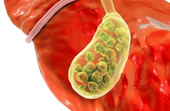 how to stop a gallbladder attack while it is happening