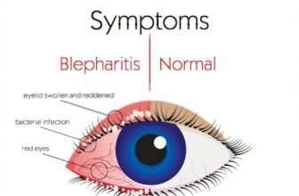 i cured my blepharitis