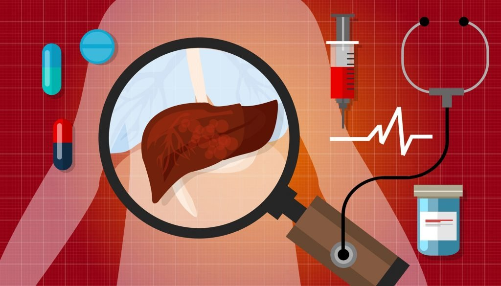 Liver abscess causes pain under the ribs area