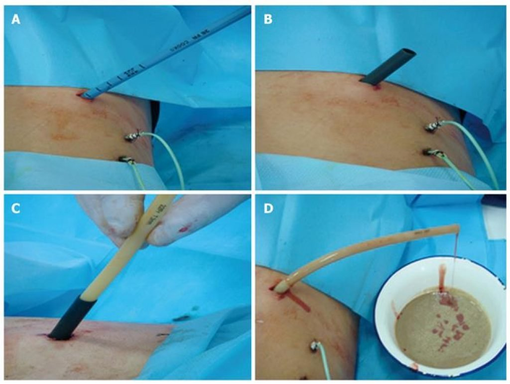 Liver abscess causes ribs pain, treatment by percutaneous drainage.