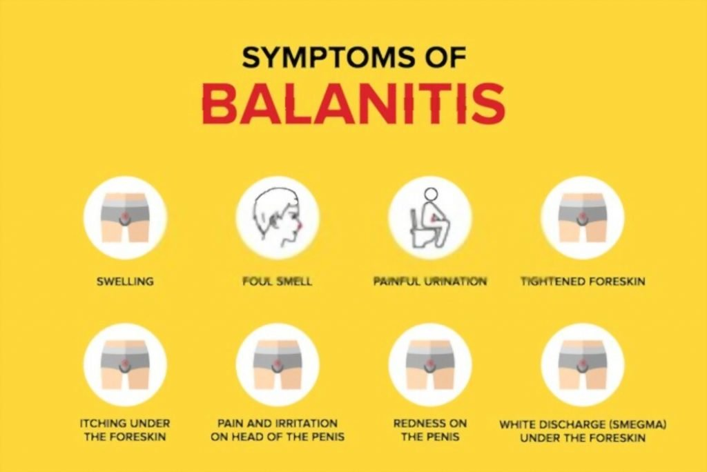 balanitis won't go away