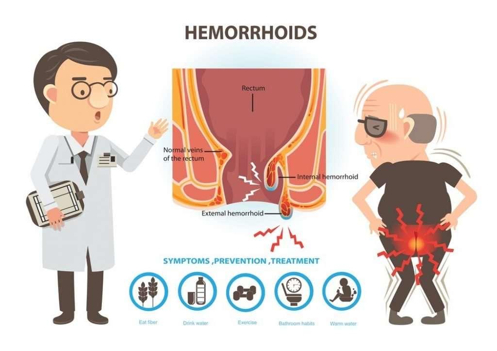 Treatment of Hemorrhoids