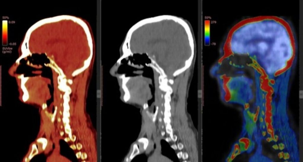 fatigue after ct scan with contrast