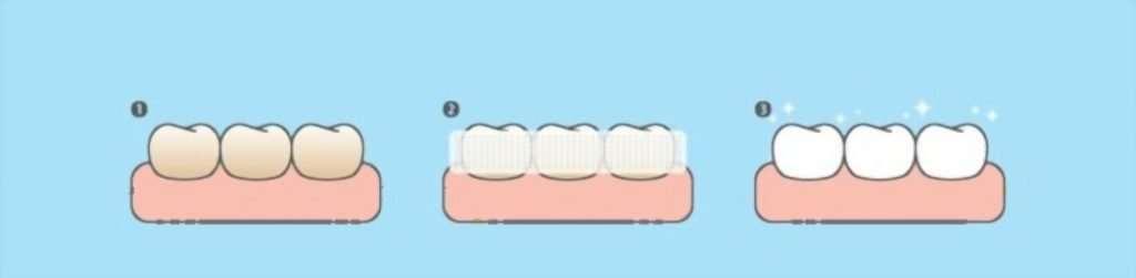 brush teeth before whitening strips