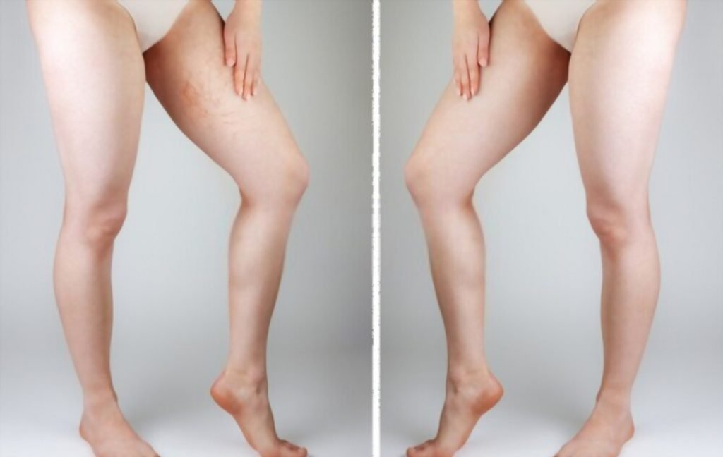 how to lighten dark inner thighs and pubic area