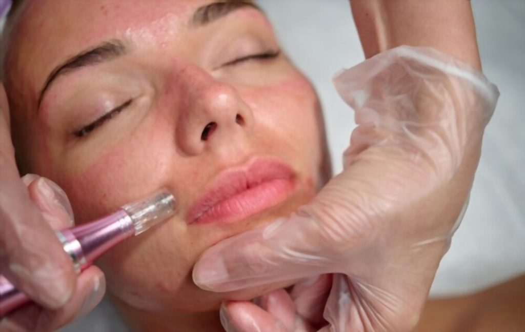how long does microneedling last