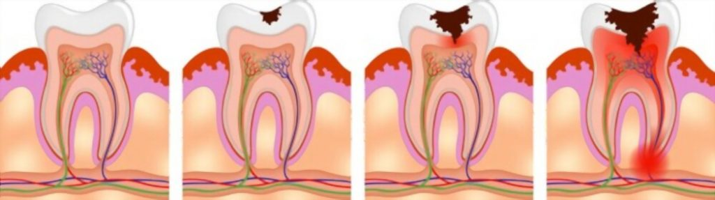ciprofloxacin for tooth infection