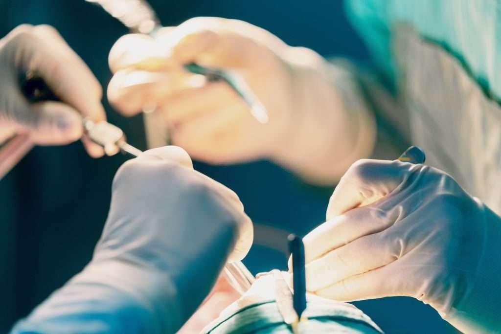 how long does liquid rhinoplasty last