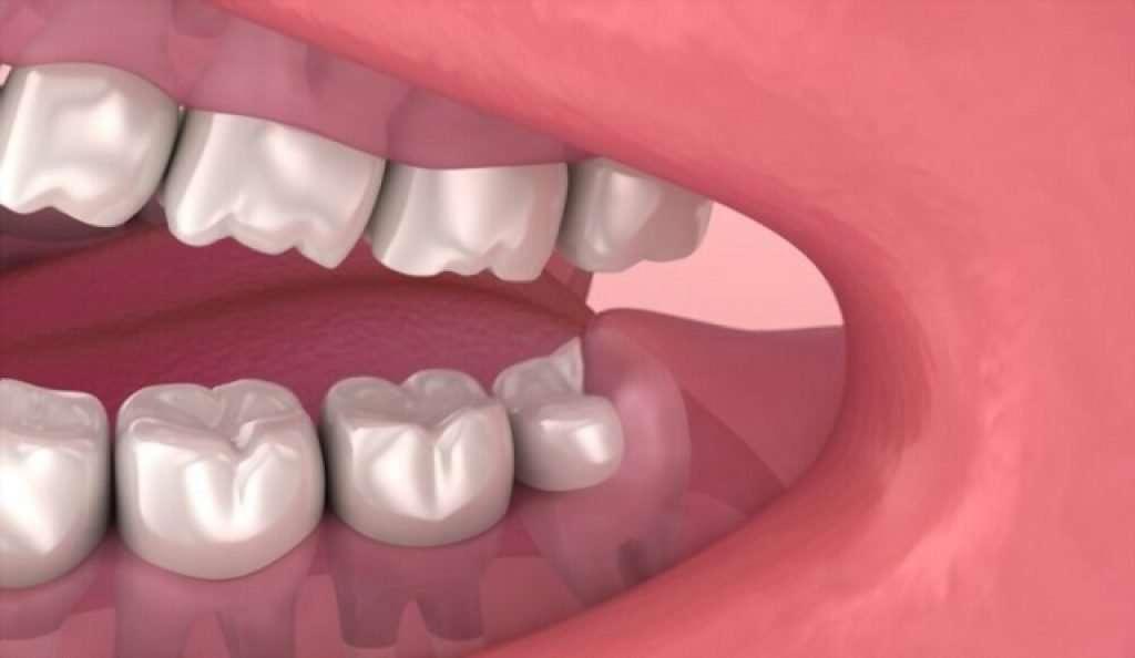 wisdom tooth cutting into cheek