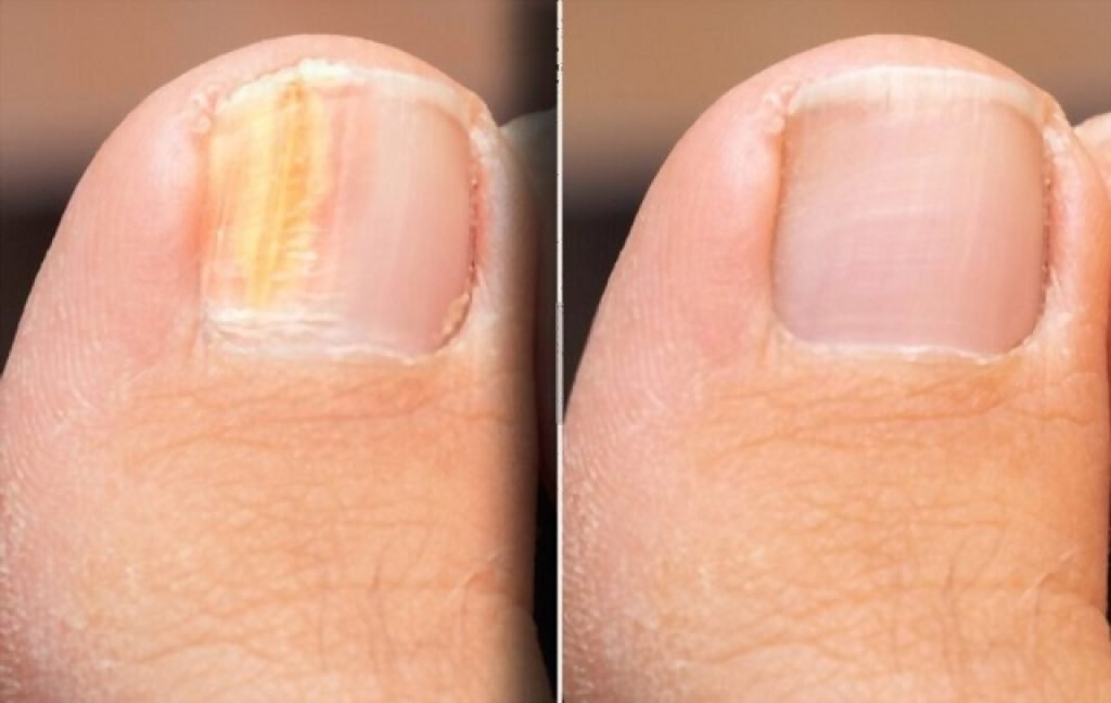 toenails that grow upwards