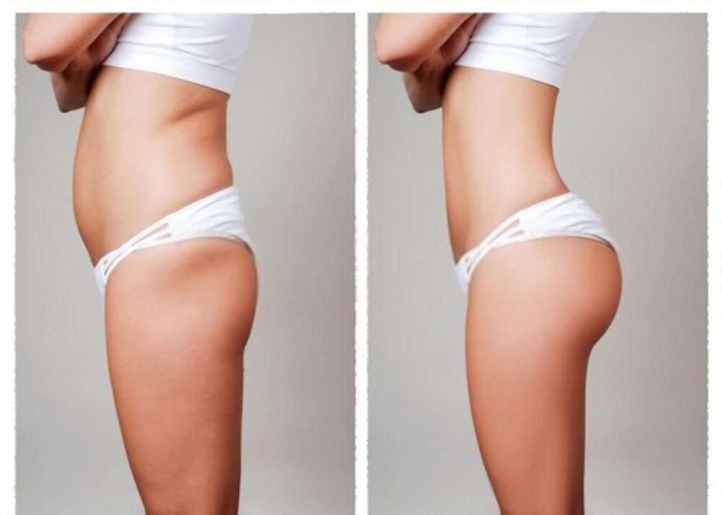 pubic liposuction cost