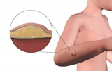 Lipoma Cure by Exercise: How Much Is This Possible for You