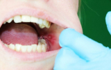 4 Ways to Prevent Wisdom Teeth Stitches Came Out