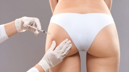 Butt Injections vs BBL: All That You Need To Know