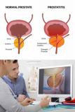 How Do I Know I Found My Prostate?