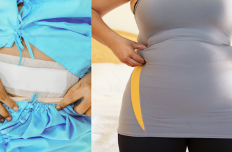 Weight Gain After Myomectomy- How to Lose It?