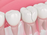 How Much Does It Cost To Fix A Chipped Tooth (2021)