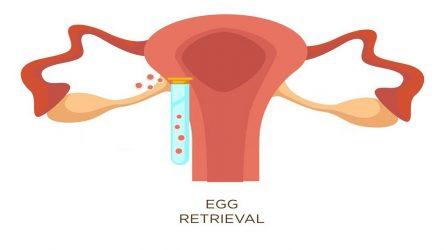 IVF Constipation – Understanding Constipation After Egg Retrieval
