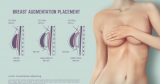 Fat Transfer Breast Augmentation Cost: All That You Need To Know