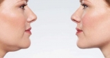 A Detailed Guide On How to Lose Fat from Face and Neck?