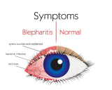 I Cured My Blepharitis In 3 Easy Ways