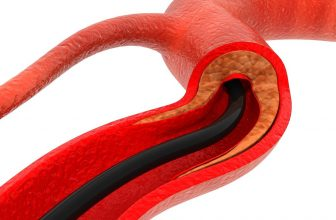 Is it Normal to Feel Tired After a Stent?